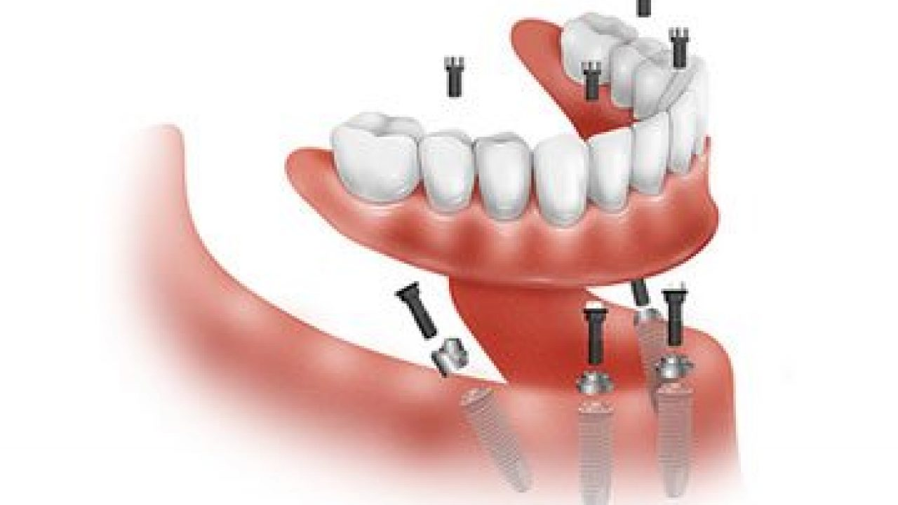 10 cares for dental implants