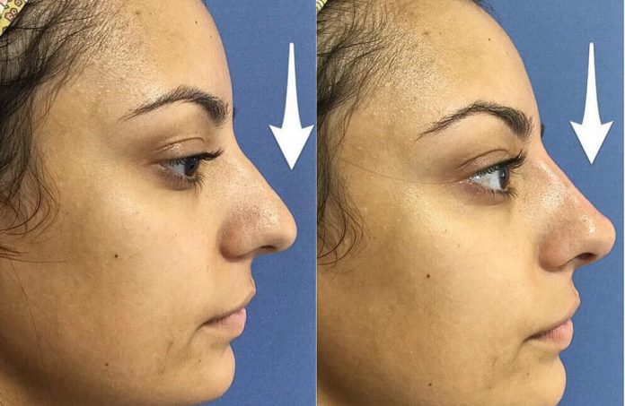 How to Improve Your Appearance with Affordable Nose Jobs