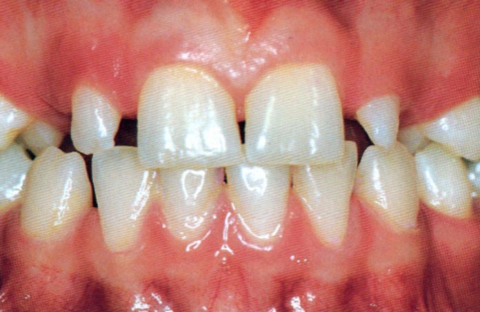 Dental Tourism can Aid You in keeping Your Teeth in Best Form